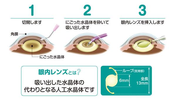 超音波水晶体乳化吸引術+眼内レンズ挿入術